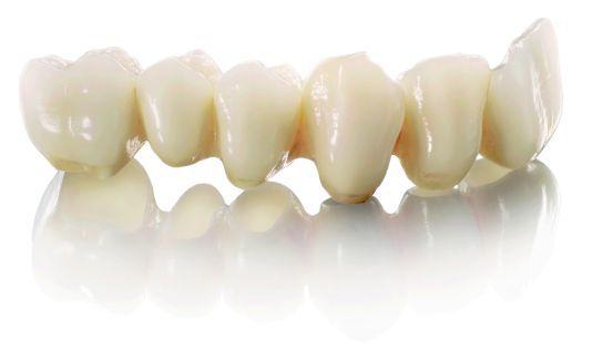 Protetyka stomatologiczna, ekspresowa naprawa protez